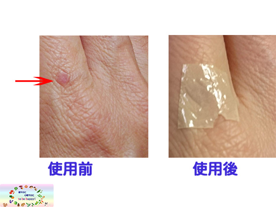 Air Skin使用前使用後