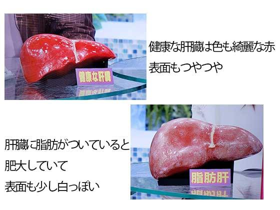 健康な肝臓と脂肪肝の肝臓