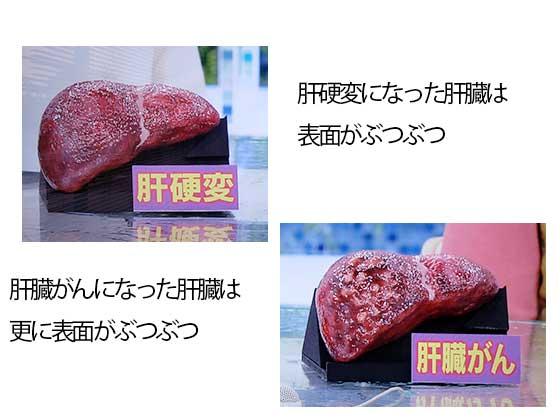 肝硬変と肝臓がんの肝臓