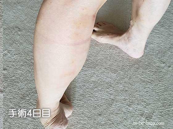 下肢静脈瘤のレーザー治療(手術)後、4日目