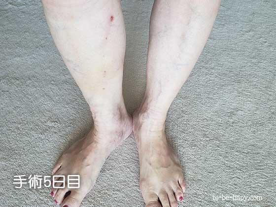 下肢静脈瘤のレーザー治療(手術)後、5日目