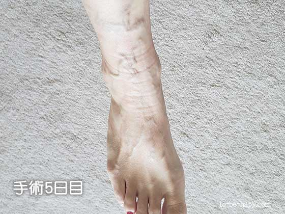下肢静脈瘤のレーザー治療(手術)5日目