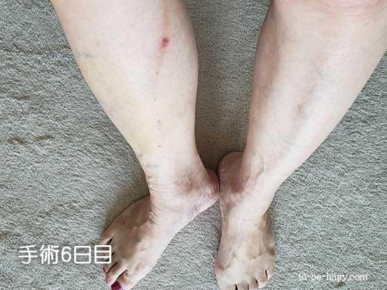 下肢静脈瘤のレーザー治療(手術)6日目)