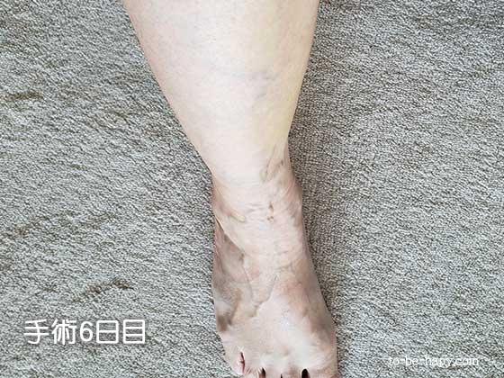 下肢静脈瘤のレーザー治療(手術)6日目