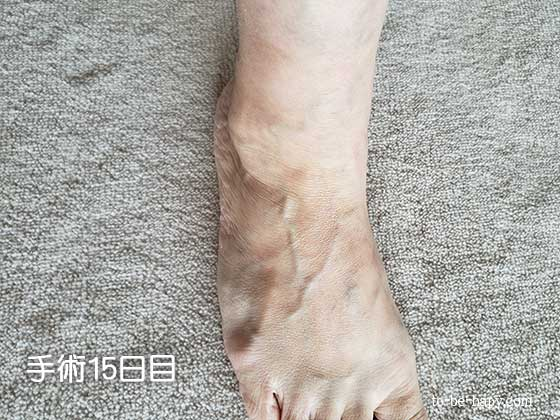 下肢静脈瘤のレーザー治療(手術)後15日目