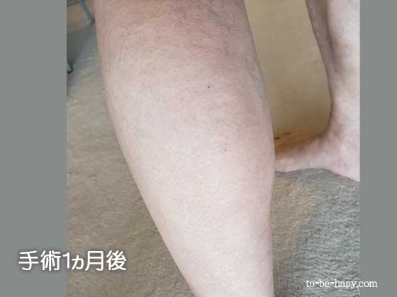 下肢静脈瘤のレーザー治療(手術)後1ヵ月