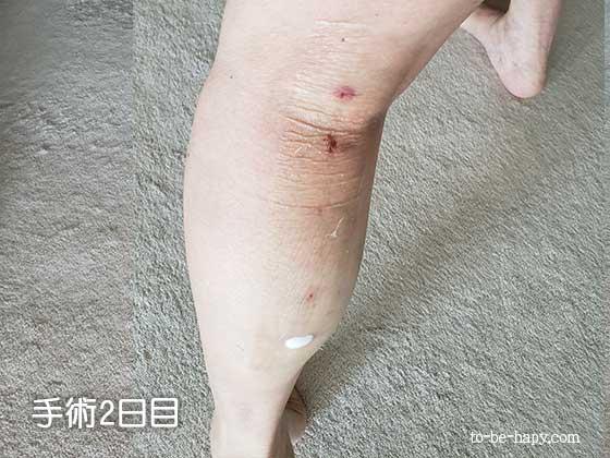 下肢静脈瘤のレーザー治療(手術)2日目の様子