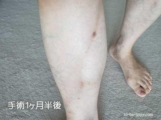 下肢静脈瘤のレーザー治療(手術)後1ヵ月半