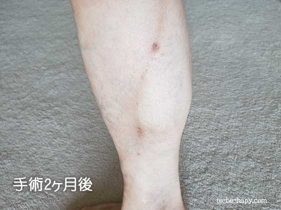 下肢静脈瘤のレーザー治療(手術)後2ヵ月