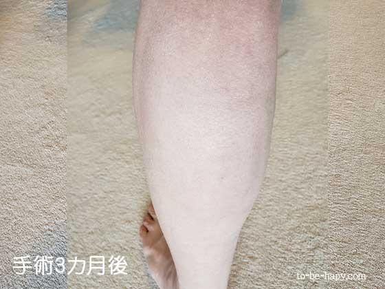下肢静脈瘤のレーザー治療(手術)後3ヵ月