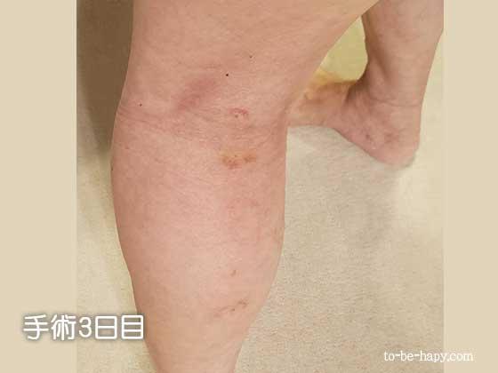下肢静脈瘤のレーザー治療(手術)後、3日目