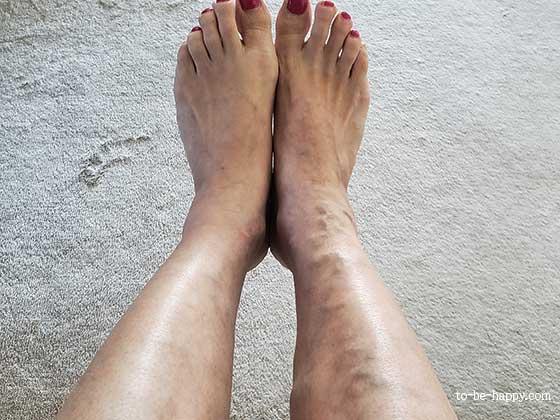脚の静脈瘤の様子 レーザー治療・レーザー手術前