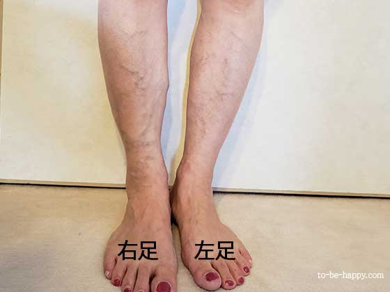 足の静脈瘤の様子 レーザー治療・レーザー手術前